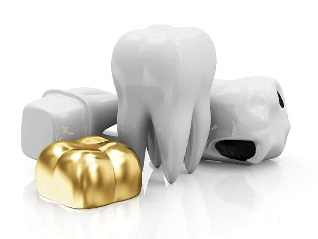 different-types-of-dental-Crowns